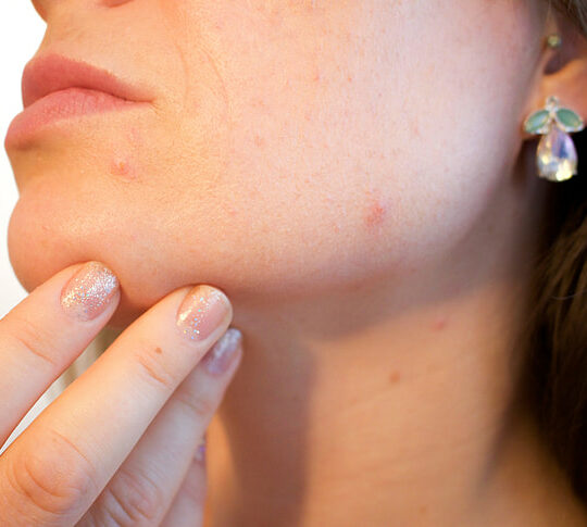 Hoe verzorg je een gevoelige huid?